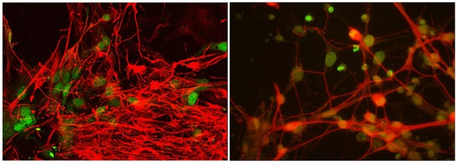 Induced pluripotent stem cell-derived motor neurons from an ALS patient (left) compared with normal cells (right). The cells are being used to study the role of the genes TBK1 and OPTN in ALS. (Credit: Laboratory of Tom Maniatis/Columbia University Medical Center)