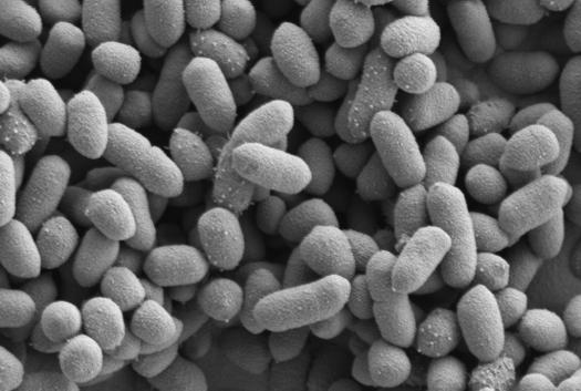 Pic:Bacteroides thetaiotaomicron gut bacteria. Source: http://bit.ly/1Fd9dLt