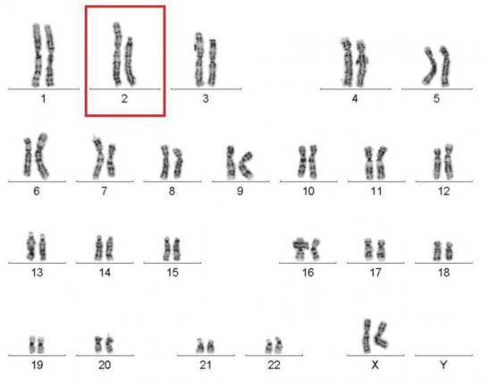 An image of all 46 chromosomes of the cured WHIM syndrome patient shows that one copy of chromosome 2 (red box) is significantly shorter than the other, a loss of genetic material caused by chromothripsis. NIAID