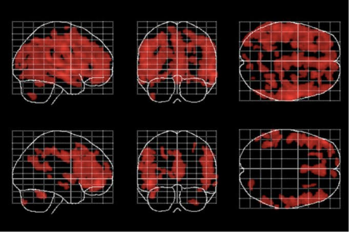 Image: Areas of the brain affected by aging (in red) are fewer and less widespread in people who meditate, bottom row, than in people who don't meditate. Pic courtesy: http://bit.ly/1LW1kfo