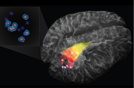 Photo credit: 3D rendering of the brain. The cancer detectable with MRI is in red and yellow. Bright points indicate cancer detected using Raman spectroscopy. Actual cancer cells are depicted in the pop out / Polytechnique Montreal and Montreal Neurological Institute
