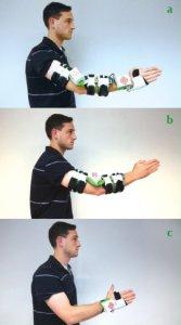 Use of the rehabilitation sleeve: (a) as a whole (b) as an elbow module (c) as a wrist module