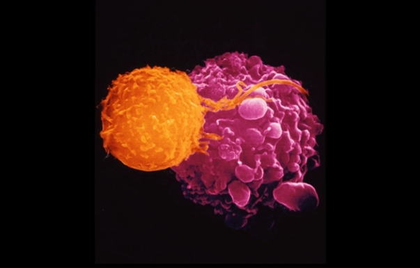 Dr. Andrejs Liepins/SPL Killer T cells (orange) are recruited to attack malignant cells (mauve) in the viral-based cancer therapy T-VEC. http://bit.ly/1SbPYWe
