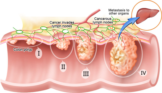 Ntu Scientists Use Dead Bacteria To Kill Colorectal Cancer Cells Biotechin Asia