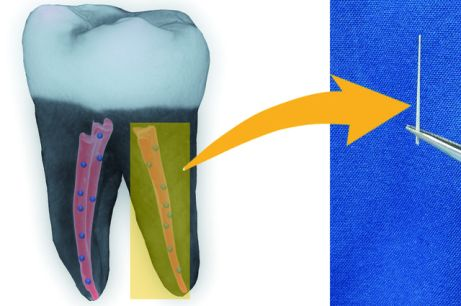 Tooth+with+nanodiamond+gutta+percha_mid