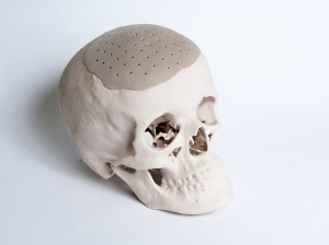 3D printing technology offers patients custom-fit implants which facilitate bone ingrowth
