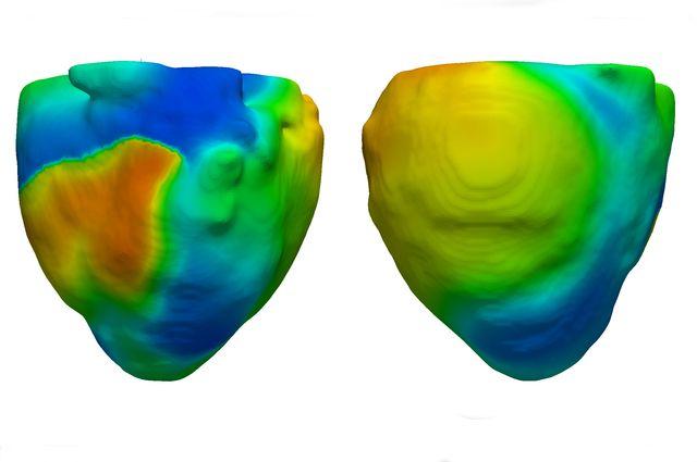 Heart+model+UCLA+Cardiac+Modeling+Group_mid